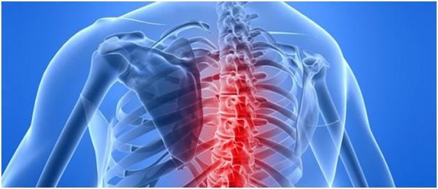 Дорсалгия грудного отдела позвоночника симптомы и лечение
