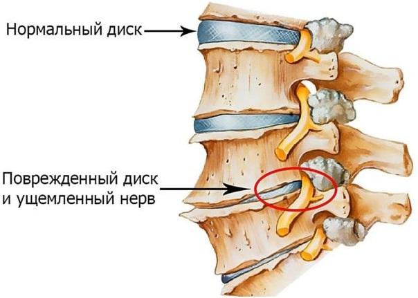 Начальные дегенеративные изменения грудного отдела позвоночника