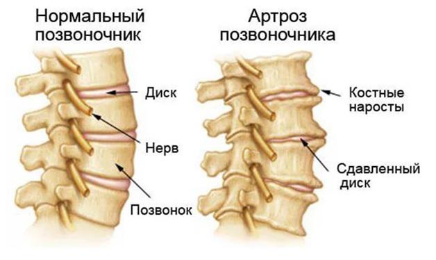 Остеоартроз позвоночника причины симптоматика лечение