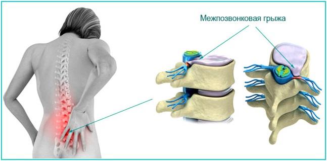 Дорсопатия поясничного отдела позвоночника рентген