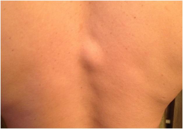 Уплотнение под кожей на спине: симптомы, лечение