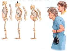 Домашние лечение остеохондроза шейного отдела позвоночника