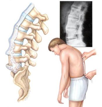 Лечение спондилолистеза поясничного отдела позвоночника Остеохондроз поясничного отдела