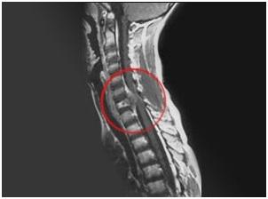 Саркома позвоночника: что это такое, симптомы, лечение