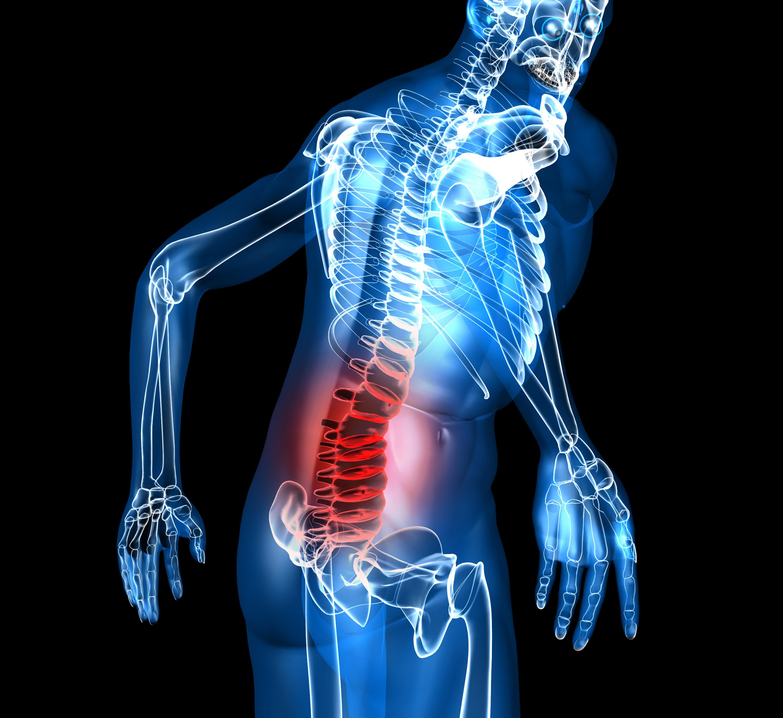 Опухоли позвоночника являются одной из причин появления боли в спине