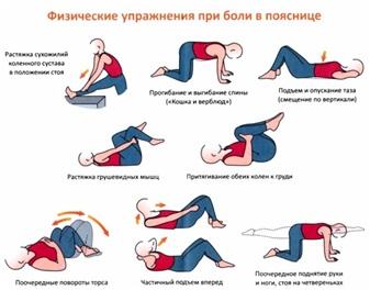 Упражнения при спондилоартрозе поясничного отдела позвоночника фото
