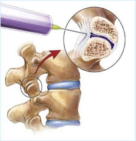 Артроз фасеточных суставов позвоночника лечение