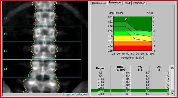 Денситометрия костей и позвоночника как метод диагностики остеопороза