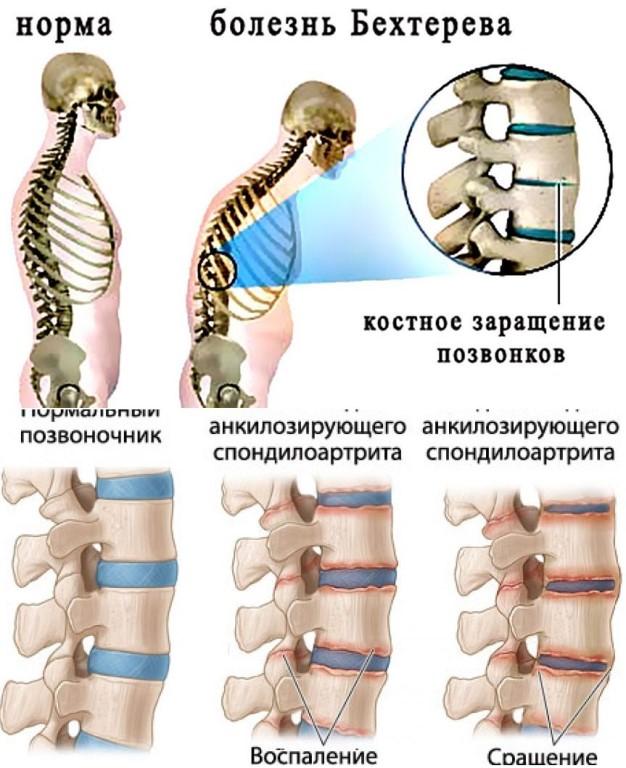 Как лечить боль в суставах рук