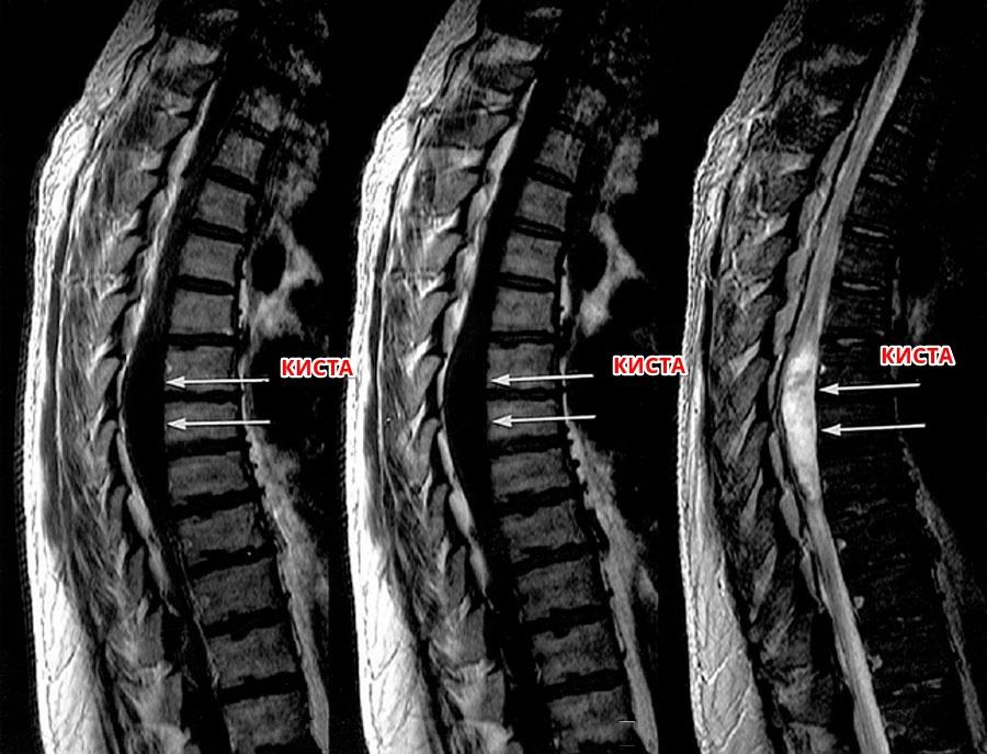 Киста грудного отдела спинного мозга
