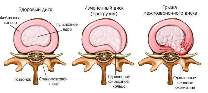 Протрузия межпозвоночных дисков пояснично-крестцового отдела