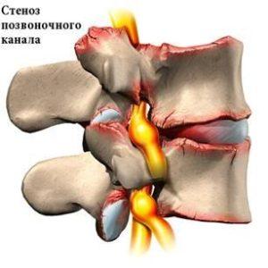 Симптомы и лечение стеноза позвоночного канала шейного отдела