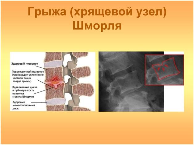 Грыжа шморля лечение физиотерапией