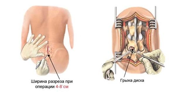 Последствия грыжи в поясничном отделе и осложнения после операции