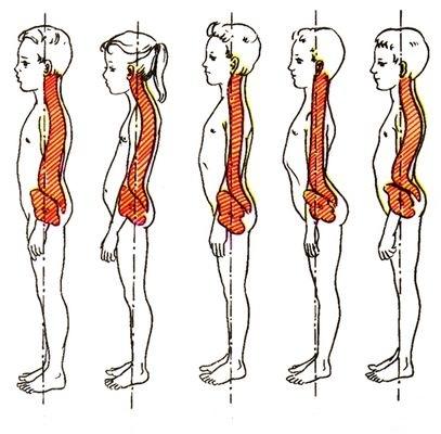 Симптомы шейного остеохондроза у детей -