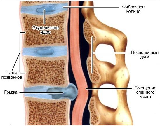 Симптомы дорсопатия шейного отдела позвоночника лечение