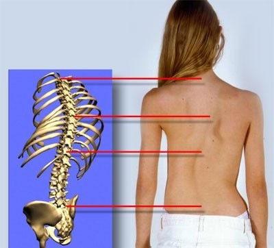 S образный сколиоз степени источники возникновения лечение