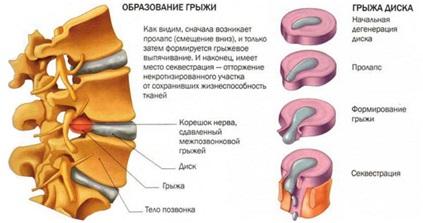 Можно ли греть грыжу шейного отдела позвоночника