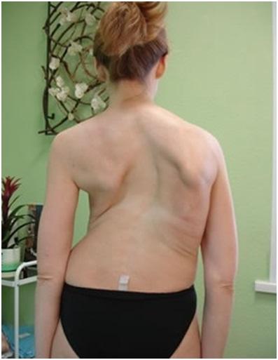 S-образный сколиоз грудного отдела позвоночника лечение