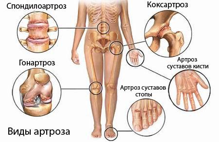 Остеохондроз коксартроз лечение -