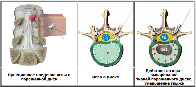 Лазерная операция при грыже шейного отдела позвоночника