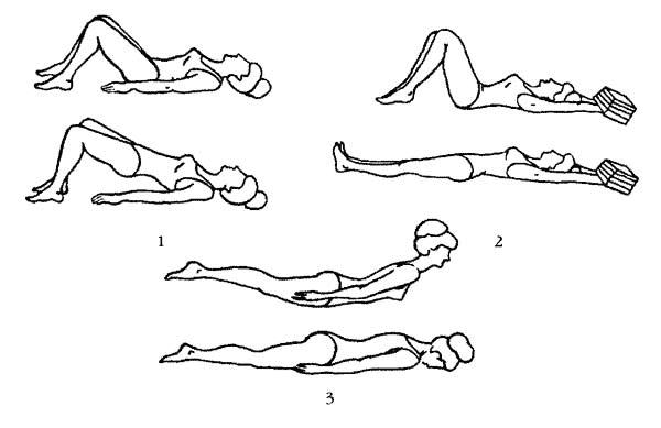 Упражнения при радикулите поясничного отдела