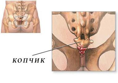 Остеохондроз позвоночника в области копчика что это и чем лечить