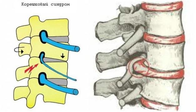 Корешковый синдром грудного отдела позвоночника симптомы и лечение