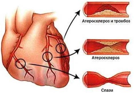 Боли в сердце при остеохондрозе отличия от других болезней лечение