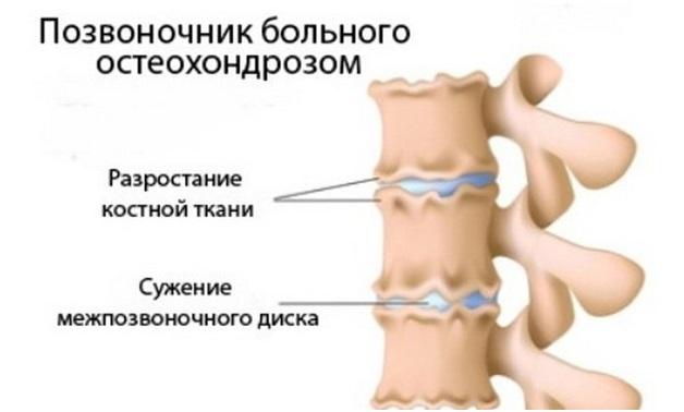 Юношеский остеохондроз симптомы особенности и лечение