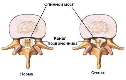 Температура при остеохондрозе шейного отдела может повышаться