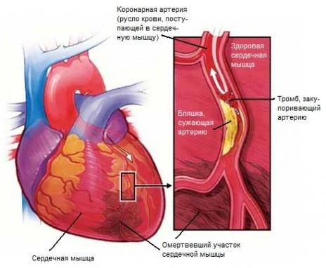 Как отличить инфаркт от невралгии и остеохондроза