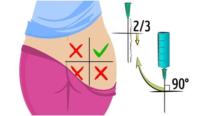 Эффективные уколы для лечения остеохондроза поясничного отдела позвоночника