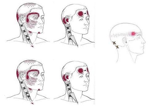 Локализация головной боли при остеохондрозе