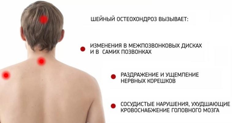 Чем можно снять воспаление шейного остеохондроза - Лечение спины
