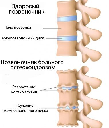 Немеют руки при остеохондрозе: причины, лечение, профилактика