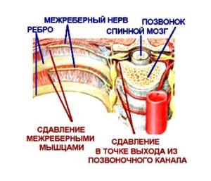 Обезболивающие и согревающие