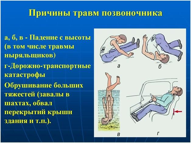 Какие бывают травмы спины