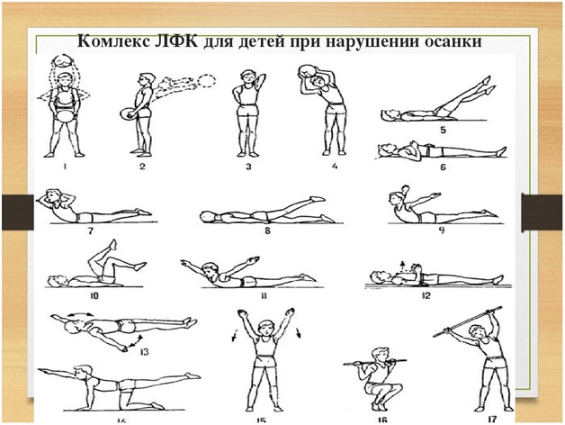 Упражнения при нарушении осанки у детей