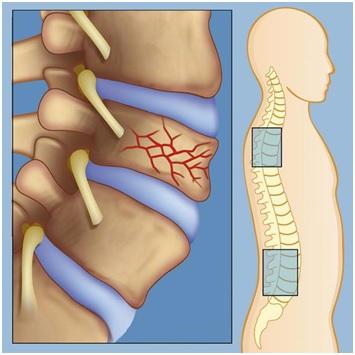 Перелом позвоночника считается нестабильным при