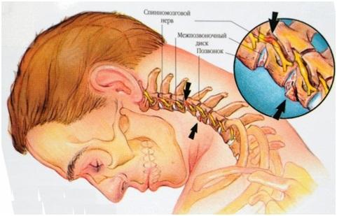 Нарушение венозного оттока при шейном остеохондрозе