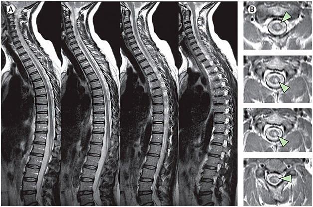 МРТ позвоночника: виды, особенности и ход процедуры