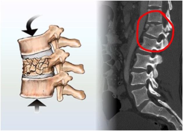 Код мкб ушиб мягких тканей грудного отдела позвоночника
