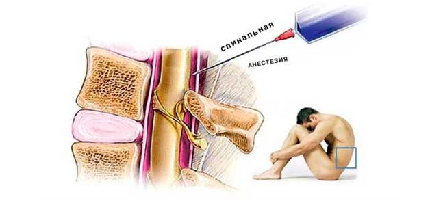 После эпидуральной анестезии болит позвоночник