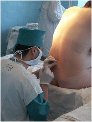 Укол в спину перед операцией