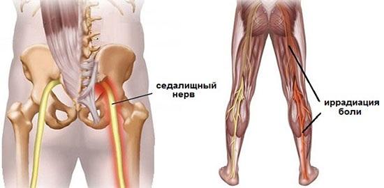 Боль в крестце отдающая в левую ногу