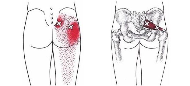 Болит поясница отдает в ягодицу и ногу