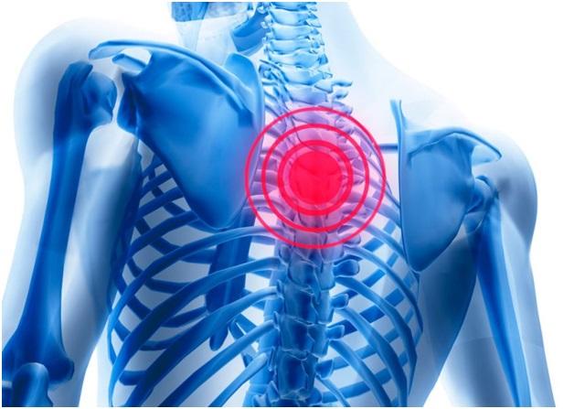 Болит спина между лопаток на позвоночнике