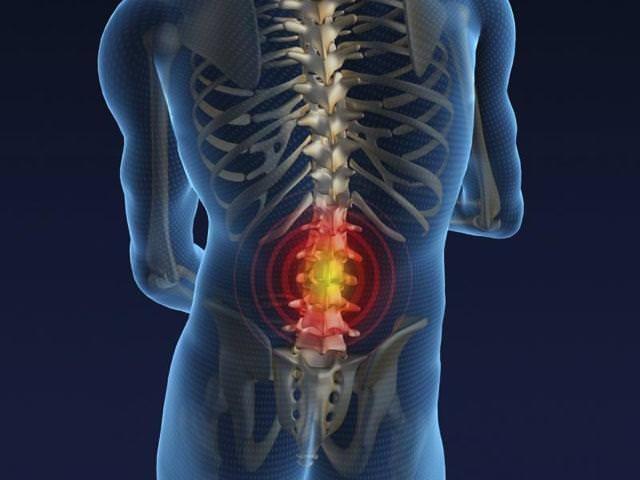 Рентген позвоночника в грудном и пояснично-крестцовом отделе