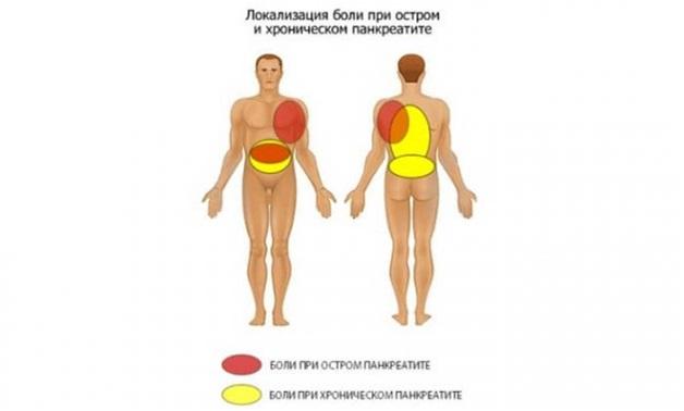 Боли в спине при панкреатите: причины и лечение